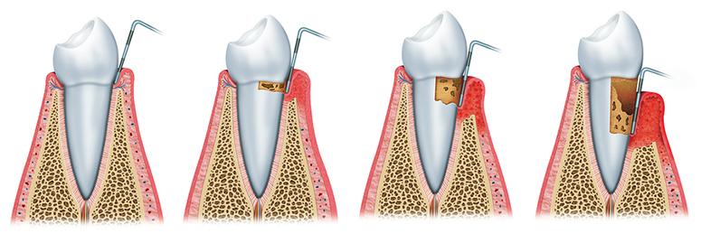 periodontal-disease-progression